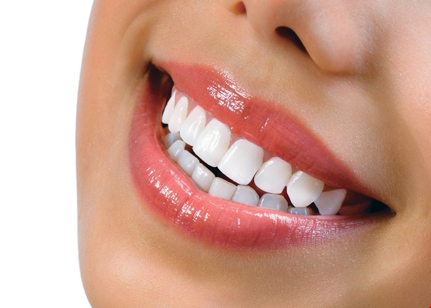 Product image for Family Dental Studio Free professional whitening