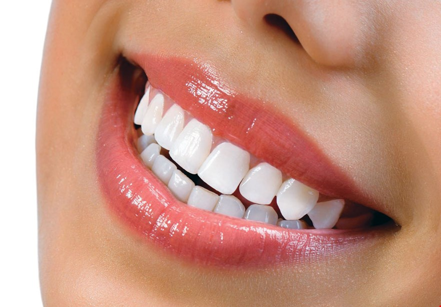 Product image for Smile Design Center of Westchester $399 ZOOM! Whitening