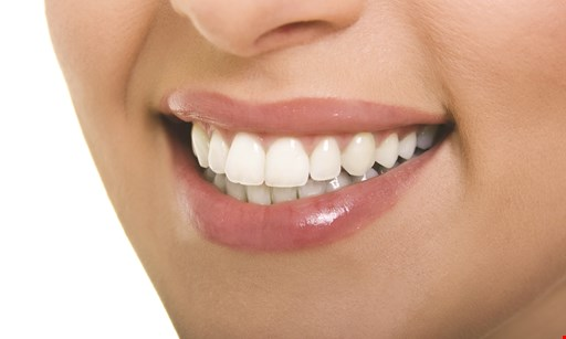 Product image for North Coast Dental $500 Off Invisalign