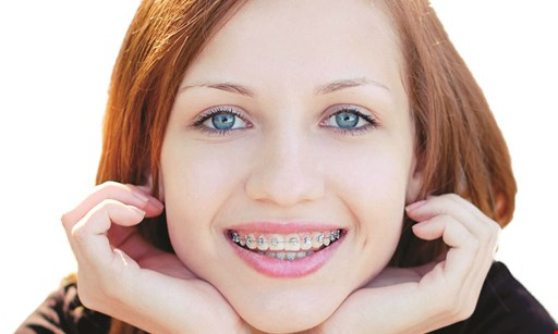 Product image for Wright Orthodontics $750 Off braces with 0% financing and $0 down payment or we will match down payment up to $500.