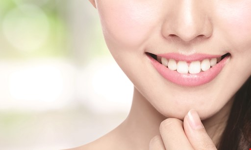 Product image for Above & Beyond Family Dentistry $1000 Off Complete Orthodontics or Invisalign.