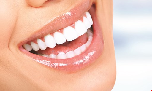 Product image for Sheridan Dental Care $99 new patients must have initial exam and x-rays before purchasing bleaching AT HOME CUSTOM TRAY BLEACHING SPECIAL.