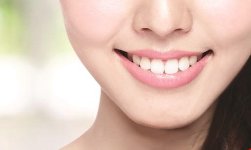 Product image for Millennium Dental Care $2,999 Invisalign