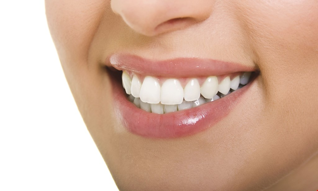 Product image for American Dental Free Teeth Whitening