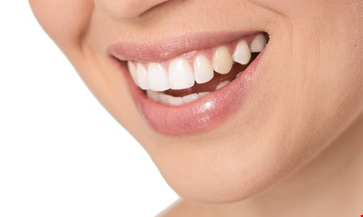 Product image for New Image Dental Group free whitening for life