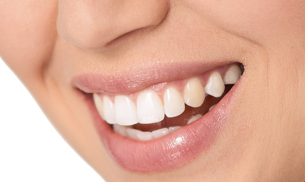 Product image for Jones Family Dentistry $99 New Patient Special