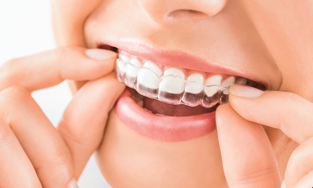 Product image for Carlsbad Dental Arts Full Invisalign treatment $3,750