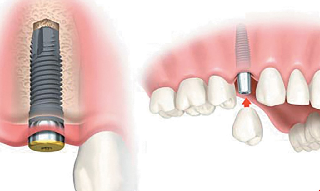 Product image for Dr. Parul Mehta & Associates $4,295 Clear BracesStraight Teeth, Less Time!Regular price $5,800.Save $1,500