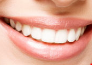 Product image for Vitalize Dental $59 $371 Value. New Patient Special Includes Exam & X-rays.