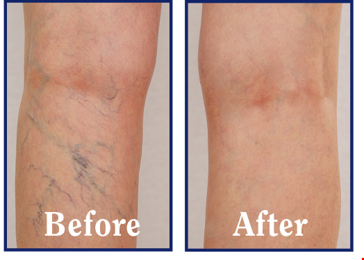 Product image for Jacksonville Vein Specialists - Atlantic Blvd FREE Cosmetic Sclerotherapy with insurance coveredmedical procedures
