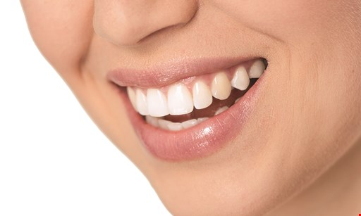 Product image for East County Family Dental Center FREE teeth whitening with any dental service plan of $500 or more