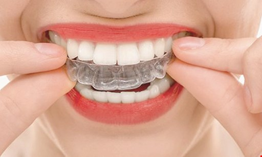 Product image for Dental Progress FREE implant consultation