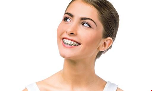 Product image for Cali Smile Orthodontics $1500 Discount Braces & Invisalign®