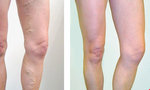 Product image for Thunderbird Vein FREE compression stockings one pair with consultation