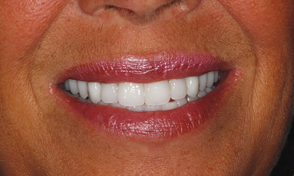 Product image for Canatella Dental $79 NEW PATIENT SPECIAL Cleaning, X-Rays and Comprehensive Exam.
