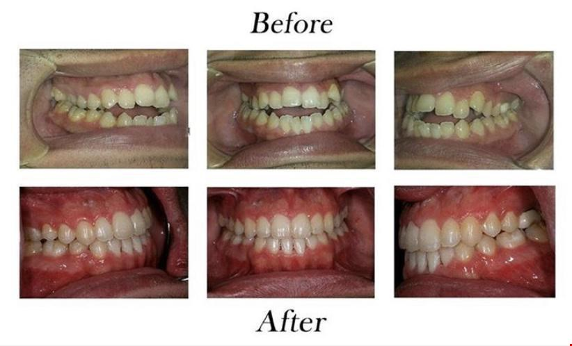Product image for Encino Dental Studio $59 Exam, X-Rays, Cleaning and Teeth Whitening