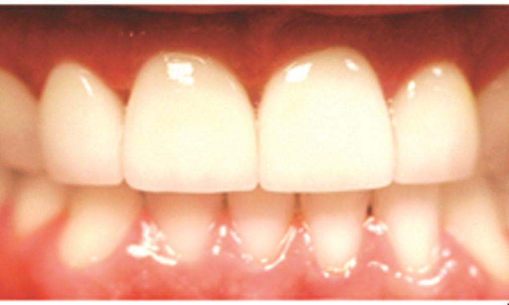 "Product image for Dr. Jose J. Alvarez & Associates Advanced Implant & Smile Design Dentistry. ONE-VISIT COMPOSITE VENEERS ""INSTANT SMILE MAKEOVER"" $499 per tooth"