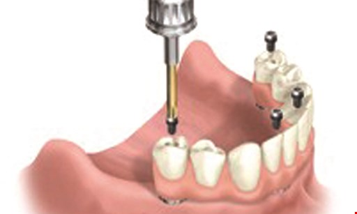 Product image for Guerrino Dentistry of Mt. Vernon $1000 PER TOOTH Laminate & all porcelain crowns, up to 6 anterior teeth covered (Reg. $1700). Includes free Zoom whitening