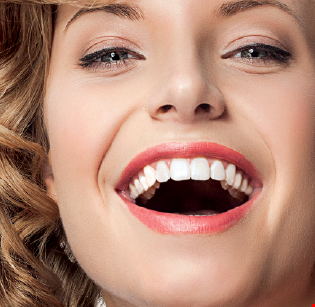 Product image for Smile Design $500 off Invisalign (clear braces).