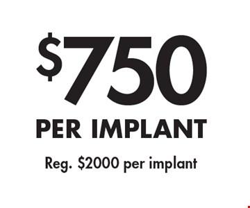 $750 per implant Reg. $2000 per implant.
