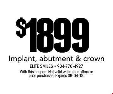 $1899 Implant, abutment & crown. With this coupon. Not valid with other offers or prior purchases. Expires 06-04-18.