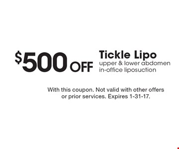 $500 off Tickle Lipo upper & lower abdomen in-office liposuction. With this coupon. Not valid with other offers or prior services. Expires 1-31-17.