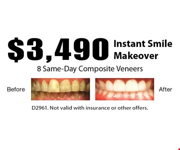 Instant Smile Makeover! $3,490 8 Same-Day Composite Veneers. D2961. Not valid with insurance or other offers.