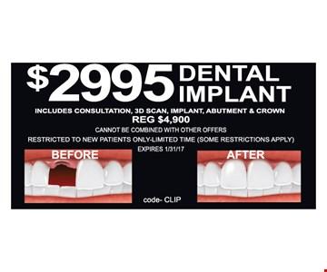 $2995 Dental Implant