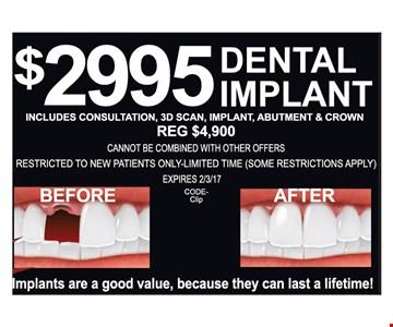 $2995 Dental Impant