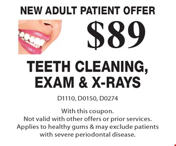 New Adult Patient Offer - $89 Teeth Cleaning, Exam & X-Rays. D1110, D0150, D0274. With this coupon.Not valid with other offers or prior services. Applies to healthy gums & may exclude patients with severe periodontal disease.