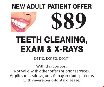 New Adult Patient Offer $89 Teeth Cleaning, Exam & X-Rays. D1110, D0150, D0274With this coupon.Not valid with other offers or prior services. Applies to healthy gums & may exclude patients with severe periodontal disease.