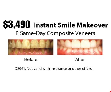 $3,490 Instant Smile Makeover 8 Same-Day Composite Veneers. D2961. Not valid with insurance or other offers.