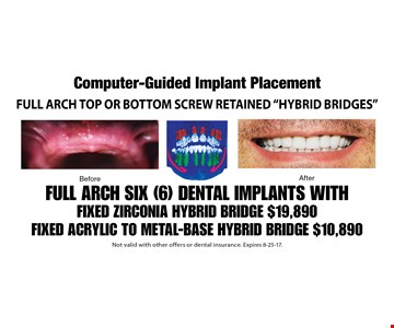 Computer-Guided Implant Placement. Full Arch Top or Bottom screw retained