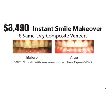 $3,490 Instant Smile Makeover. 8 Same-Day Composite Veneers. D2961. Not valid with insurance or other offers. Expires 6-23-17.