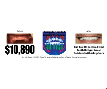 $10,890 Full Top Or Bottom Fixed Teeth Bridge, Screw Retained with 6 Implants. Acrylic Teeth D6010, D6078. Not valid with other offer or dental insurance.