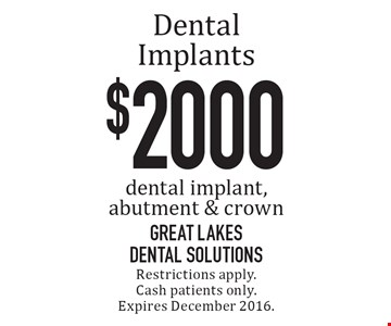 $2000 Dental Implants: dental implant, abutment & crown. Restrictions apply. Cash patients only. Expires December 2016.