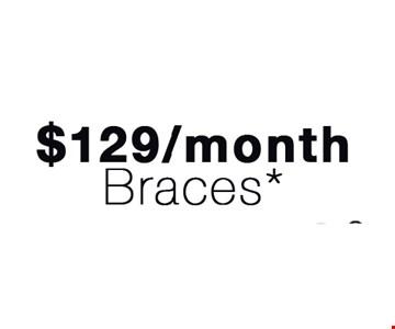 $129 a month braces