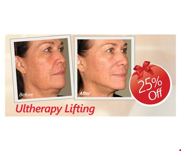 25% Off Ultherapy Lifting