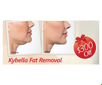$300 Off Kybella Fat Removal