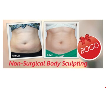 BOGO Non-Surgical Body Sculpting