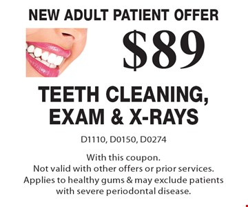 New Adult Patient Offer - $89 Teeth Cleaning, Exam & X-Rays. D1110, D0150, D0274. With this coupon. Not valid with other offers or prior services. Applies to healthy gums & may exclude patients with severe periodontal disease.