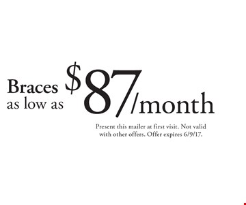 Braces as low as $87/month. Present this mailer at first visit. Not valid with other offers. Offer expires 6/9/17.