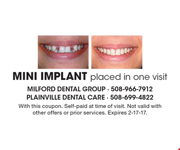 MINI IMPLANT placed in one visit. With this coupon. Self-paid at time of visit. Not valid withother offers or prior services. Expires 2-17-17.