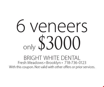 Only $3000 6 veneers. With this coupon. Not valid with other offers or prior services.