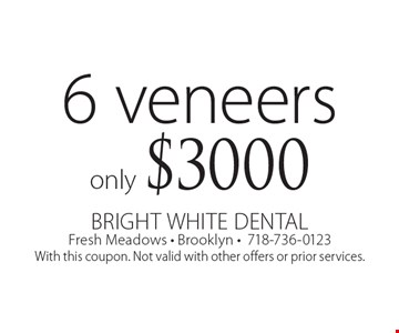 6 veneers only $3000. With this coupon. Not valid with other offers or prior services.