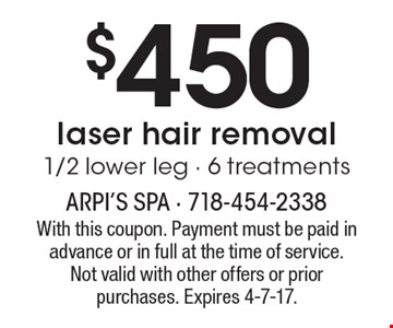 $450 laser hair removal 1/2 lower leg. 6 treatments. With this coupon. Payment must be paid in advance or in full at the time of service. Not valid with other offers or prior purchases. Expires 4-7-17.