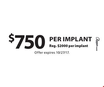 $750 per implant. Reg. $2000 per implant. Offer expires 10/27/17.