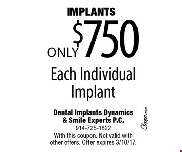 IMPLANTS Only $750 Each Individual Implant. With this coupon. Not valid with other offers. Offer expires 3/10/17.