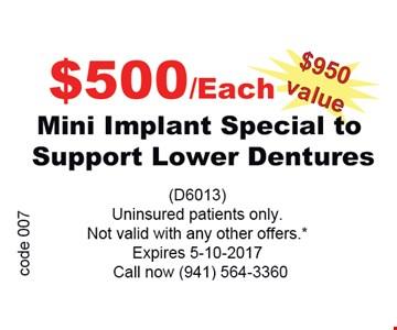 $500/ea Mini Implant Special