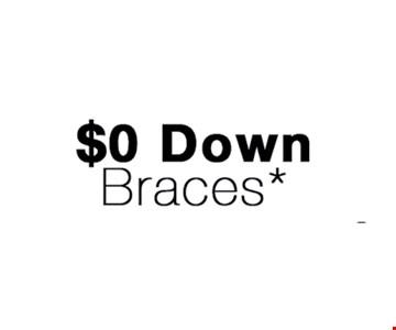 $0 Down Braces*